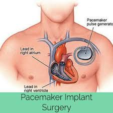 Global Implantable Cardiac Pacemaker Market 2017 – Trends, Opportunities and Forecasts (2017-2022)