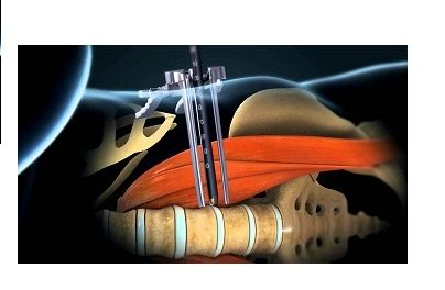 China Lateral Lumbar Interbody Fusion Market Growth by Manufacturers, Regions (Province), Type and Application, Forecast to 2022