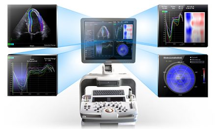 Cardiovascular Information System Market Analysis Report and Forecast Upto 2021