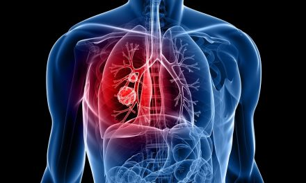 Global Lung Cancer Therapeutic Market Research and Analysis, 2015-2021