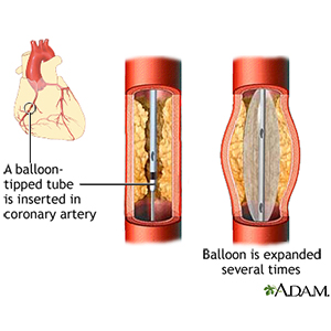 Global Myocardial Infarction Drug Sales Market Report 2018 Research Report Popular Trends, Forecast and Analysis