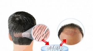 Panacea Is The Best Hair Transplant Clinic in Delhi